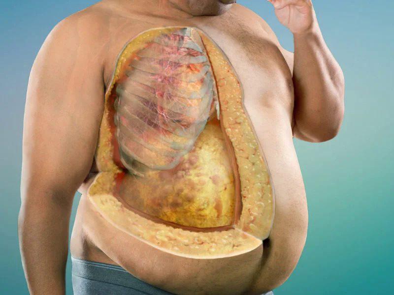 Висцеральный жир — чем он опасен для вас и как с ним бороться?